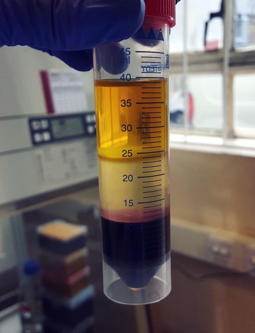 immunology - blood prep (ficoll gradient) - Maria Sharif