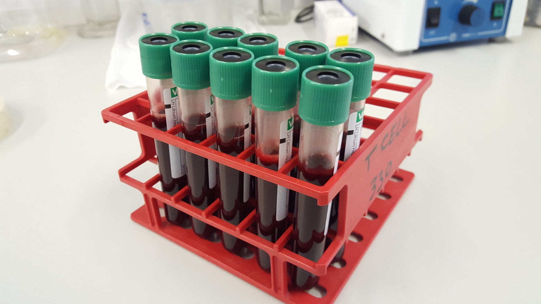 immunology - blood samples - Maria Sharif